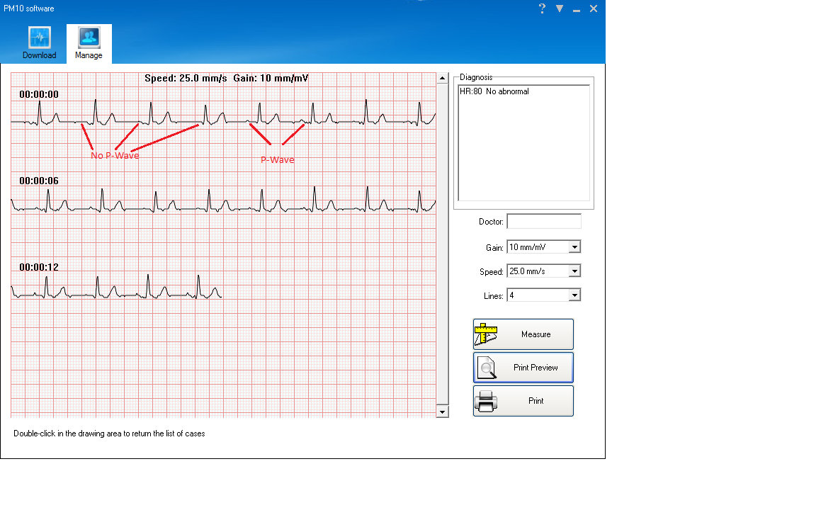 EMAY Portable ECG//EKG Monitor PC Software Compatible With Both Windows /& Mac